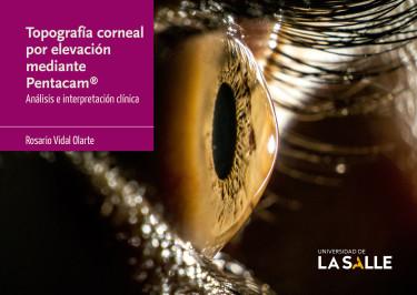 Topografía corneal por elevación mediante Pentacam®