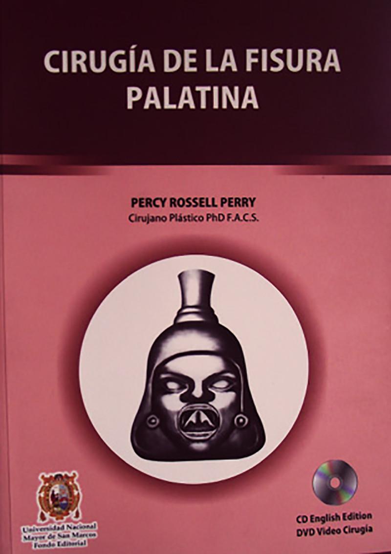 CIRUGÍA DE LA FISURA PALATINA